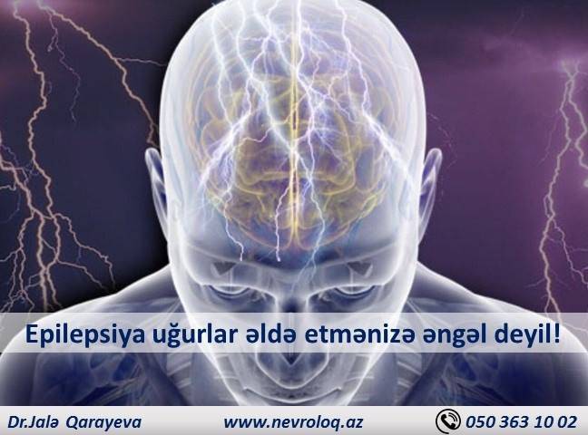 epilepsiya