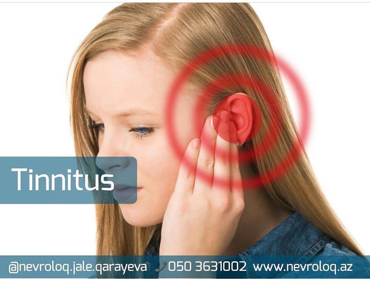 tinnitus - Qulaqda ses olmasi