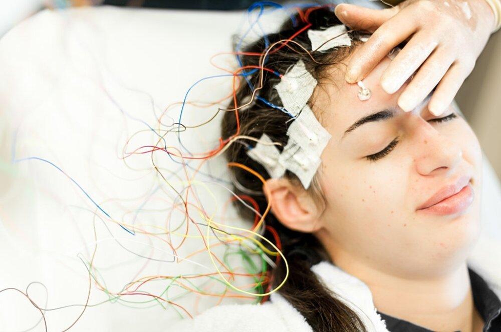 Epilepsiya elametleri