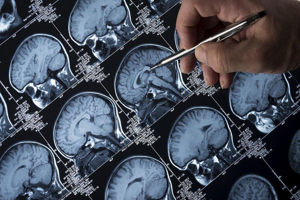 Epilepsiya neden yaranir